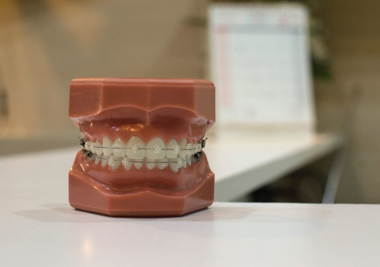 What You Need to Know About Your Wisdom Teeth